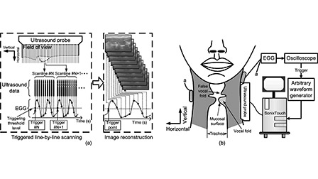 Visualizing the mechanical wave of vocal fold tissue during